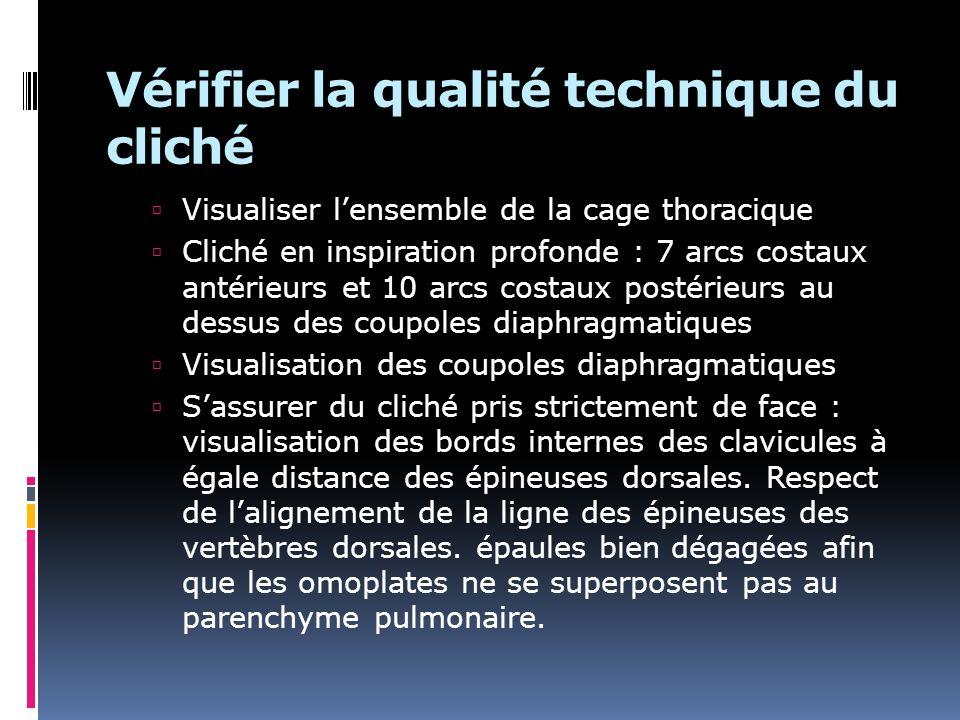 Vérifier la qualité technique du cliché Visualiser lensemble de la cage thoracique Cliché en inspiration profonde : 7 arcs costaux antérieurs et 10 ar