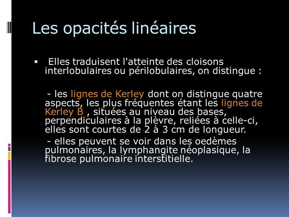 Elles traduisent l'atteinte des cloisons interlobulaires ou périlobulaires, on distingue : - les lignes de Kerley dont on distingue quatre aspects, le