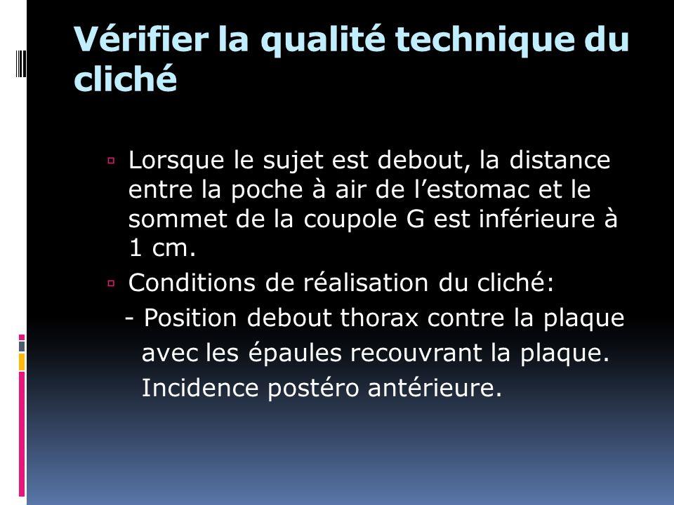 Vérifier la qualité technique du cliché Lorsque le sujet est debout, la distance entre la poche à air de lestomac et le sommet de la coupole G est inférieure à 1 cm.