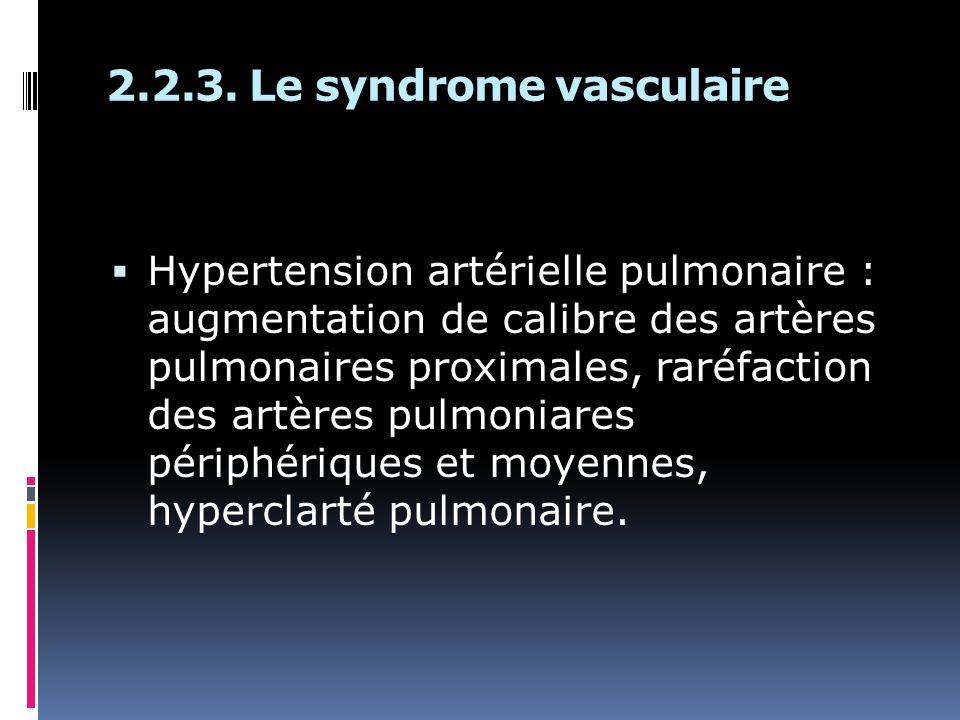 Hypertension artérielle pulmonaire : augmentation de calibre des artères pulmonaires proximales, raréfaction des artères pulmoniares périphériques et