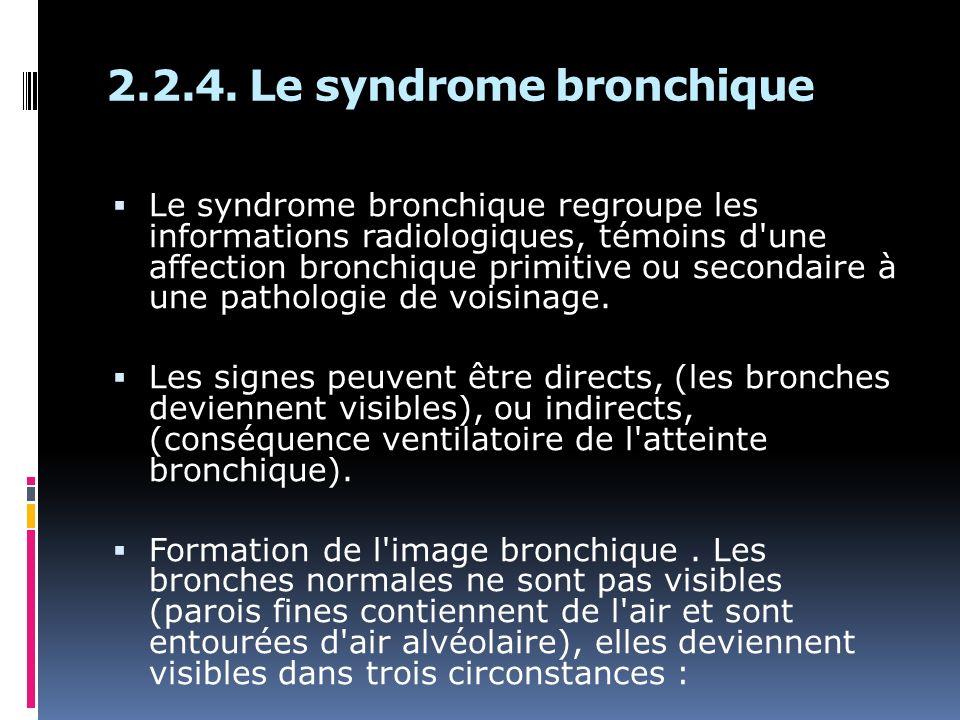 2.2.4. Le syndrome bronchique Le syndrome bronchique regroupe les informations radiologiques, témoins d'une affection bronchique primitive ou secondai