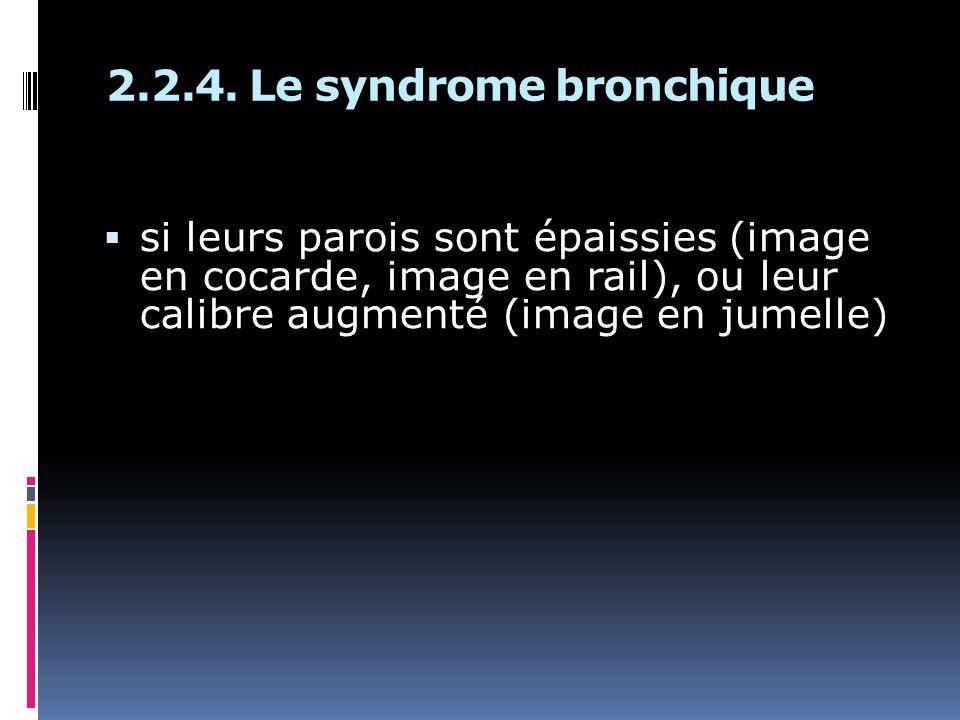 2.2.4. Le syndrome bronchique si leurs parois sont épaissies (image en cocarde, image en rail), ou leur calibre augmenté (image en jumelle)