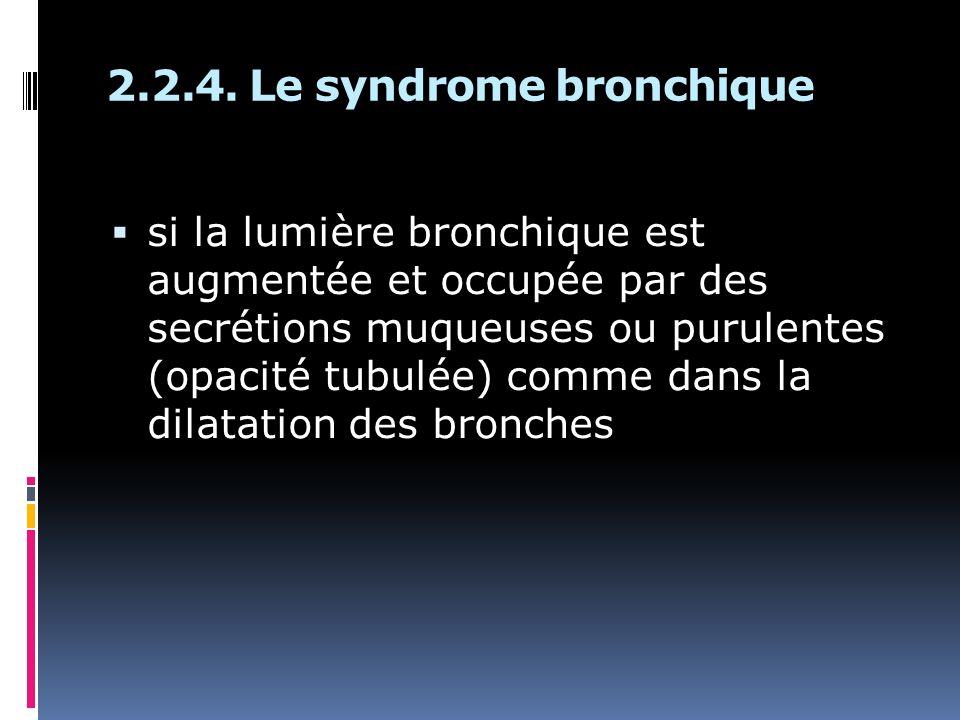 si la lumière bronchique est augmentée et occupée par des secrétions muqueuses ou purulentes (opacité tubulée) comme dans la dilatation des bronches