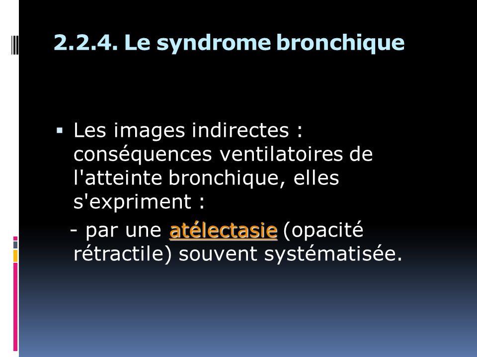 2.2.4. Le syndrome bronchique Les images indirectes : conséquences ventilatoires de l'atteinte bronchique, elles s'expriment : atélectasie - par une a