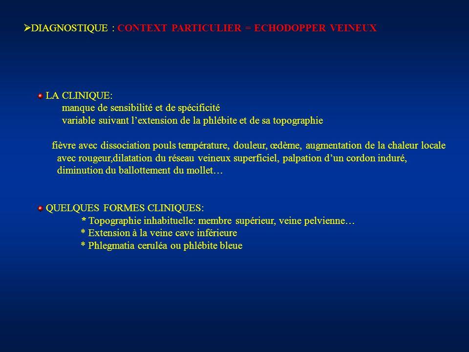 DIAGNOSTIQUE : CONTEXT PARTICULIER = ECHODOPPER VEINEUX LA CLINIQUE: manque de sensibilité et de spécificité variable suivant lextension de la phlébit