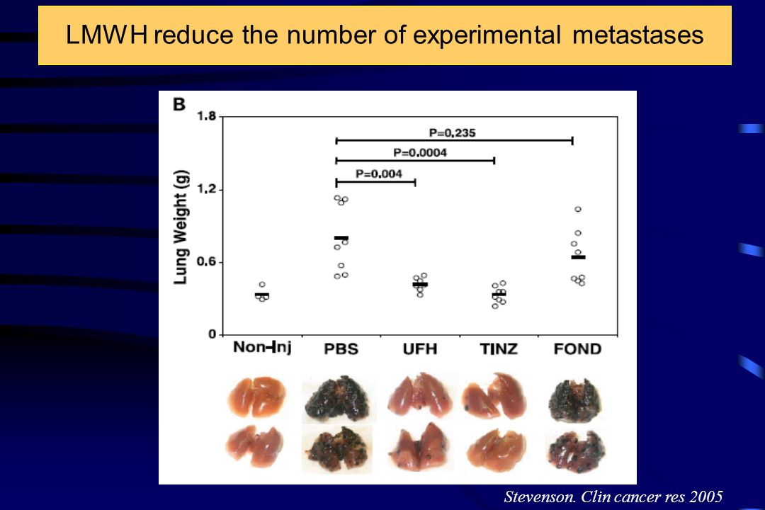 LMWH reduce the number of experimental metastases Stevenson. Clin cancer res 2005