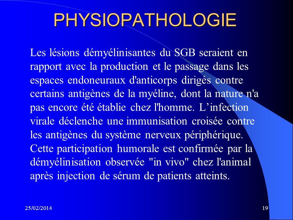 INTRODUCTION Définition: Syndrome de Guillain Barré, polyradiculonévrite inflammatoire aiguë avec démyélinisation segmentaire multifocale d'origine au
