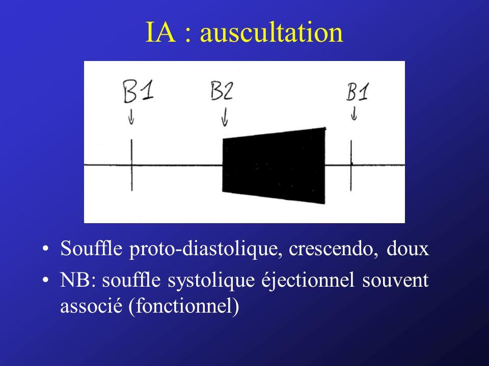 IA : auscultation Souffle proto-diastolique, crescendo, doux NB: souffle systolique éjectionnel souvent associé (fonctionnel)