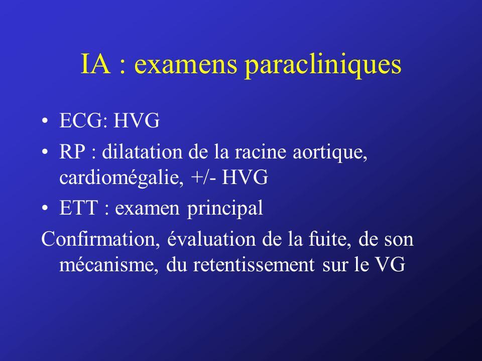 IA : examens paracliniques ECG: HVG RP : dilatation de la racine aortique, cardiomégalie, +/- HVG ETT : examen principal Confirmation, évaluation de l