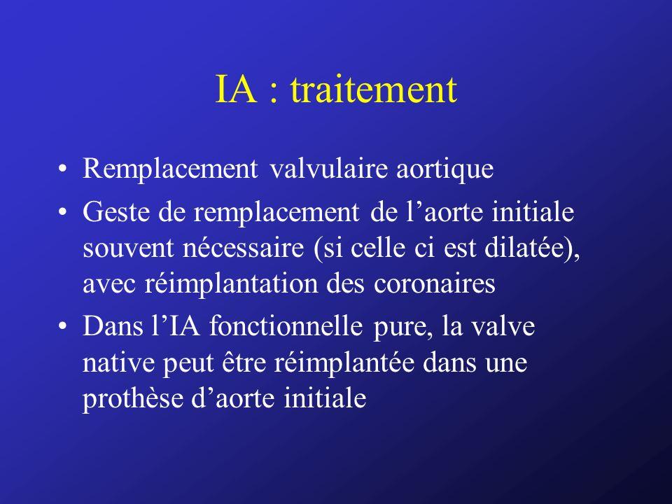IA : traitement Remplacement valvulaire aortique Geste de remplacement de laorte initiale souvent nécessaire (si celle ci est dilatée), avec réimplant