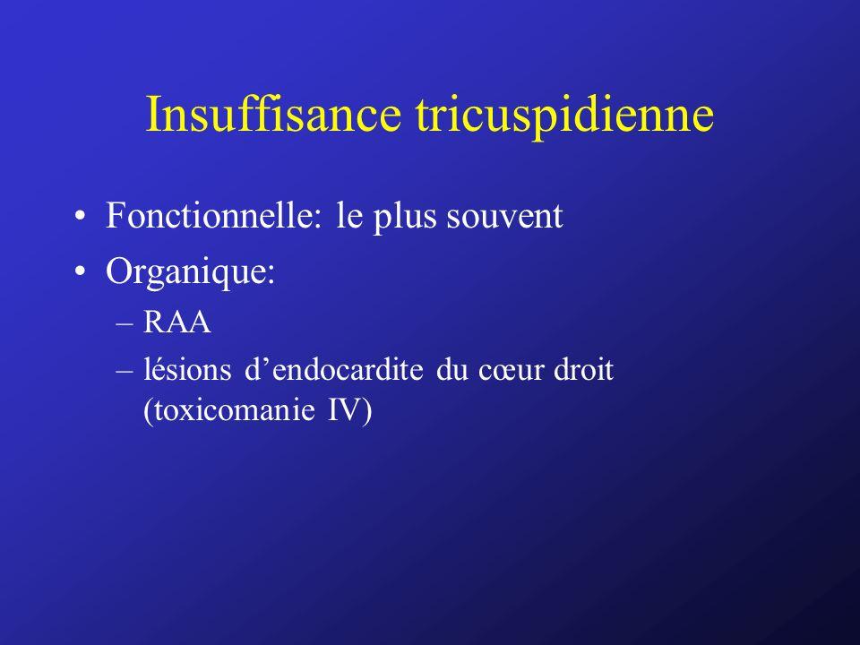 Insuffisance tricuspidienne Fonctionnelle: le plus souvent Organique: –RAA –lésions dendocardite du cœur droit (toxicomanie IV)