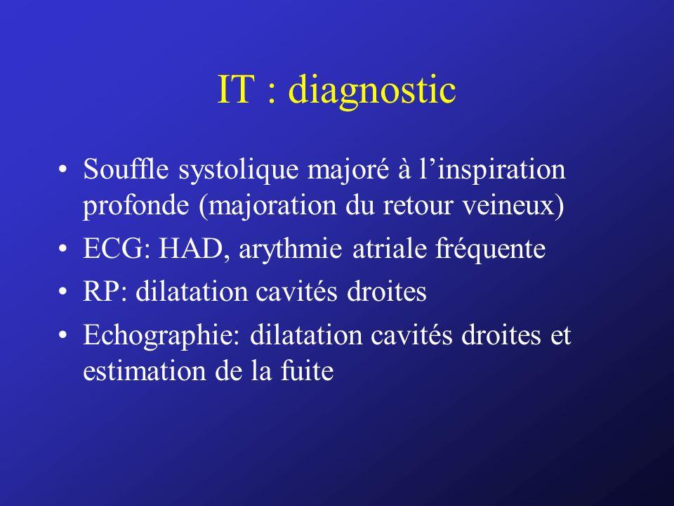 IT : diagnostic Souffle systolique majoré à linspiration profonde (majoration du retour veineux) ECG: HAD, arythmie atriale fréquente RP: dilatation c