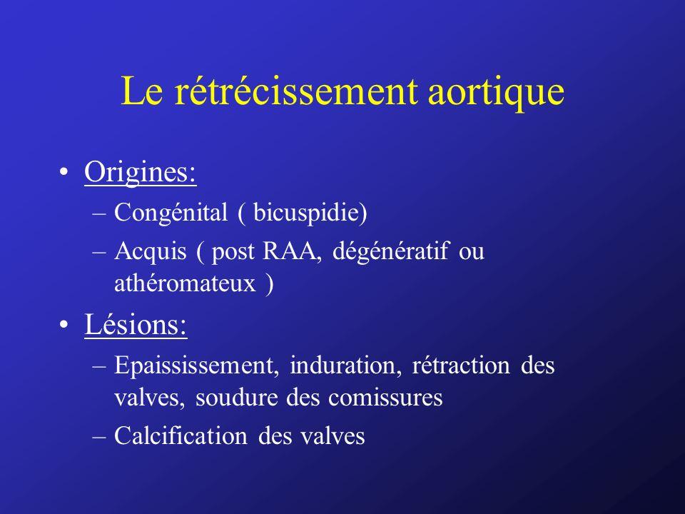 Le rétrécissement aortique Origines: –Congénital ( bicuspidie) –Acquis ( post RAA, dégénératif ou athéromateux ) Lésions: –Epaississement, induration,
