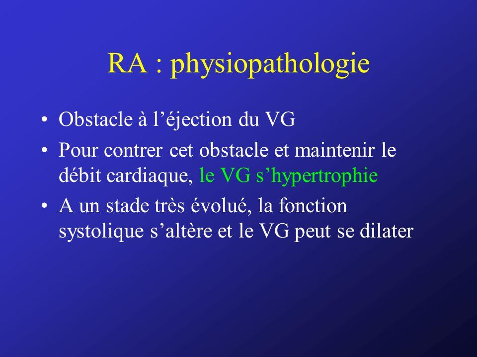 RA : physiopathologie Obstacle à léjection du VG Pour contrer cet obstacle et maintenir le débit cardiaque, le VG shypertrophie A un stade très évolué