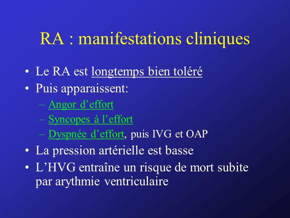 RA : manifestations cliniques Le RA est longtemps bien toléré Puis apparaissent: –Angor deffort –Syncopes à leffort –Dyspnée deffort, puis IVG et OAP