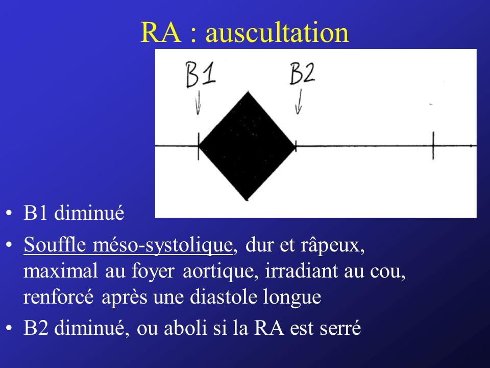 RA : auscultation B1 diminué Souffle méso-systolique, dur et râpeux, maximal au foyer aortique, irradiant au cou, renforcé après une diastole longue B