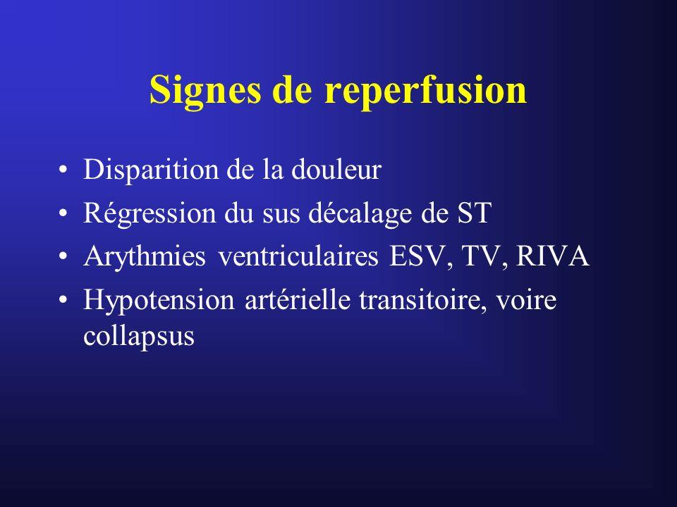 Signes de reperfusion Disparition de la douleur Régression du sus décalage de ST Arythmies ventriculaires ESV, TV, RIVA Hypotension artérielle transit