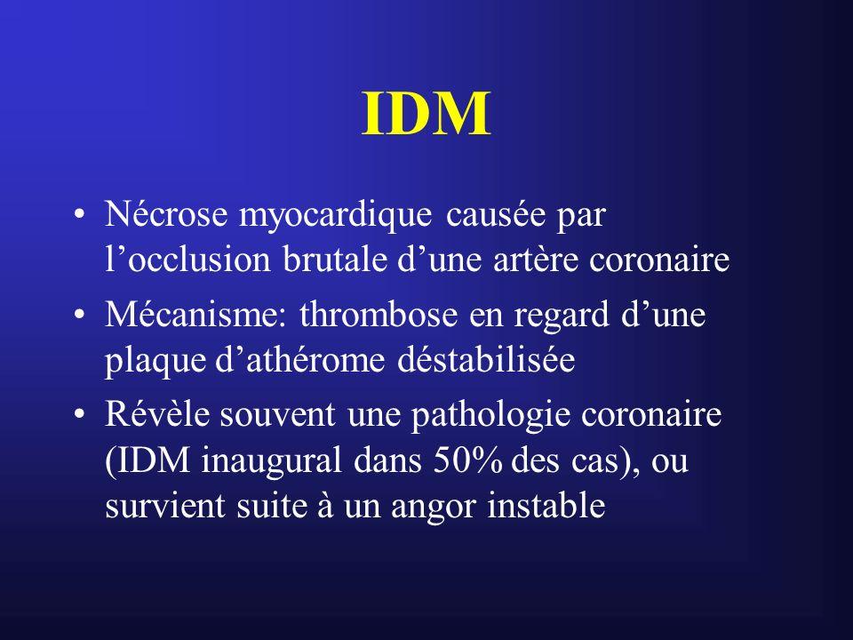 IDM Nécrose myocardique causée par locclusion brutale dune artère coronaire Mécanisme: thrombose en regard dune plaque dathérome déstabilisée Révèle s