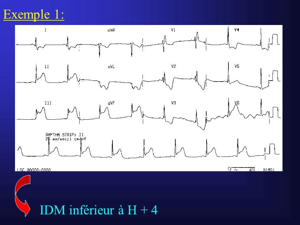Exemple 1: IDM inférieur à H + 4
