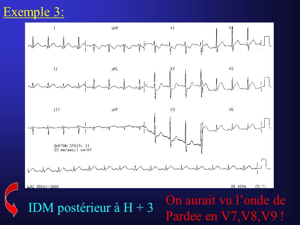 Exemple 3: IDM postérieur à H + 3 On aurait vu londe de Pardee en V7,V8,V9 !