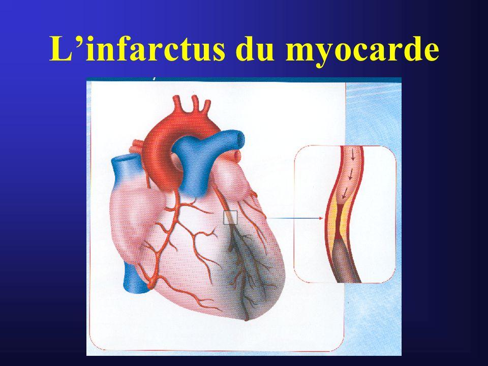 IDM Première cause de mortalité des pays industrialisés Première cause dinsuffisance cardiaque Fréquence légèrement en baisse au profit du Sd coronaire aigu ST- qui augmente