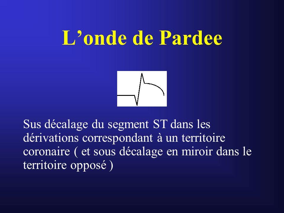 Londe de Pardee Sus décalage du segment ST dans les dérivations correspondant à un territoire coronaire ( et sous décalage en miroir dans le territoir