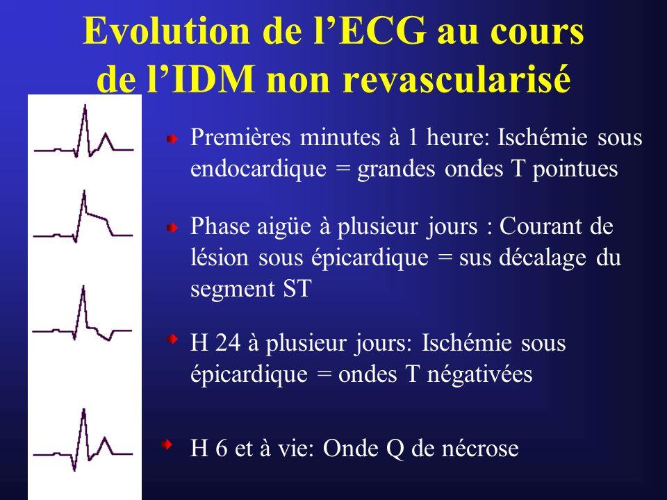 Evolution de lECG au cours de lIDM non revascularisé Premières minutes à 1 heure: Ischémie sous endocardique = grandes ondes T pointues Phase aigüe à