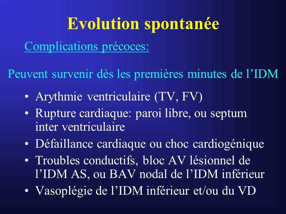 Evolution spontanée Complications précoces: Arythmie ventriculaire (TV, FV) Rupture cardiaque: paroi libre, ou septum inter ventriculaire Défaillance