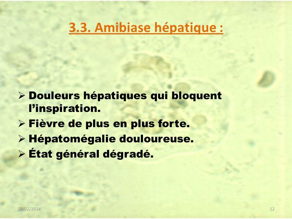 3.3. Amibiase hépatique : Douleurs hépatiques qui bloquent linspiration. Fièvre de plus en plus forte. Hépatomégalie douloureuse. État général dégradé