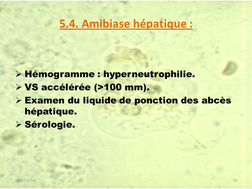 5.4. Amibiase hépatique : Hémogramme : hyperneutrophilie. VS accélérée (>100 mm). Examen du liquide de ponction des abcès hépatique. Sérologie. 25/02/