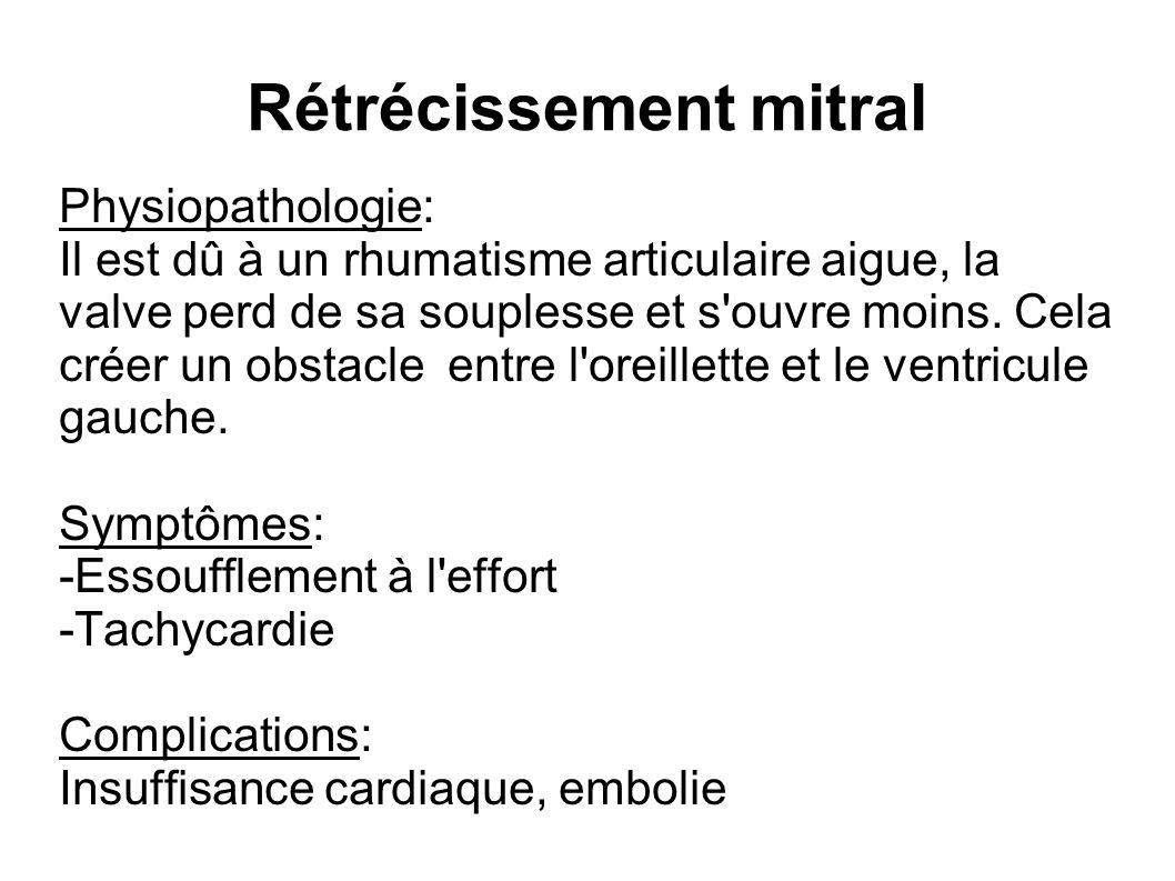 Rétrécissement mitral Physiopathologie: Il est dû à un rhumatisme articulaire aigue, la valve perd de sa souplesse et s'ouvre moins. Cela créer un obs