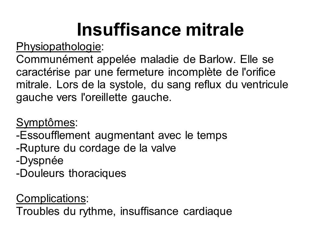 Insuffisance mitrale Physiopathologie: Communément appelée maladie de Barlow.