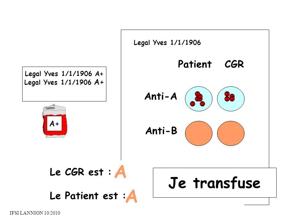 PatientCGR Anti-A Anti-B Le CGR est : Le Patient est : A A Je transfuse Legal Yves 1/1/1906 A+ A+ Legal Yves 1/1/1906 IFSI LANNION 10/2010