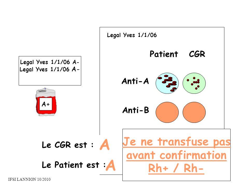 PatientCGR Anti-A Anti-B Le CGR est : Le Patient est : A A Legal Yves 1/1/06 A- A+ Legal Yves 1/1/06 Je ne transfuse pas avant confirmation Rh+ / Rh- IFSI LANNION 10/2010