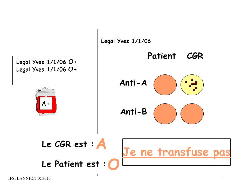 PatientCGR Anti-A Anti-B Le CGR est : Le Patient est : A O Je ne transfuse pas Legal Yves 1/1/06 Legal Yves 1/1/06 O+ A+ IFSI LANNION 10/2010