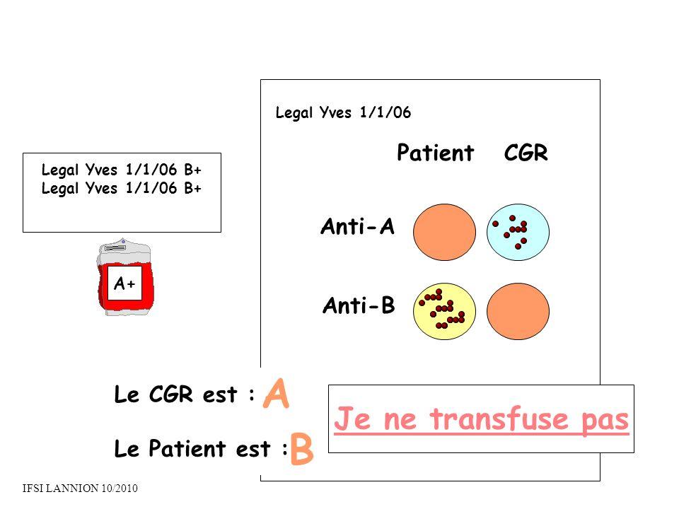 PatientCGR Anti-A Anti-B Le CGR est : Le Patient est : A B Je ne transfuse pas Legal Yves 1/1/06 Legal Yves 1/1/06 B+ A+ IFSI LANNION 10/2010