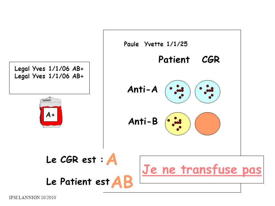 PatientCGR Anti-A Anti-B Le CGR est : Le Patient est : A AB Paule Yvette 1/1/25 Legal Yves 1/1/06 AB+ A+ Je ne transfuse pas IFSI LANNION 10/2010