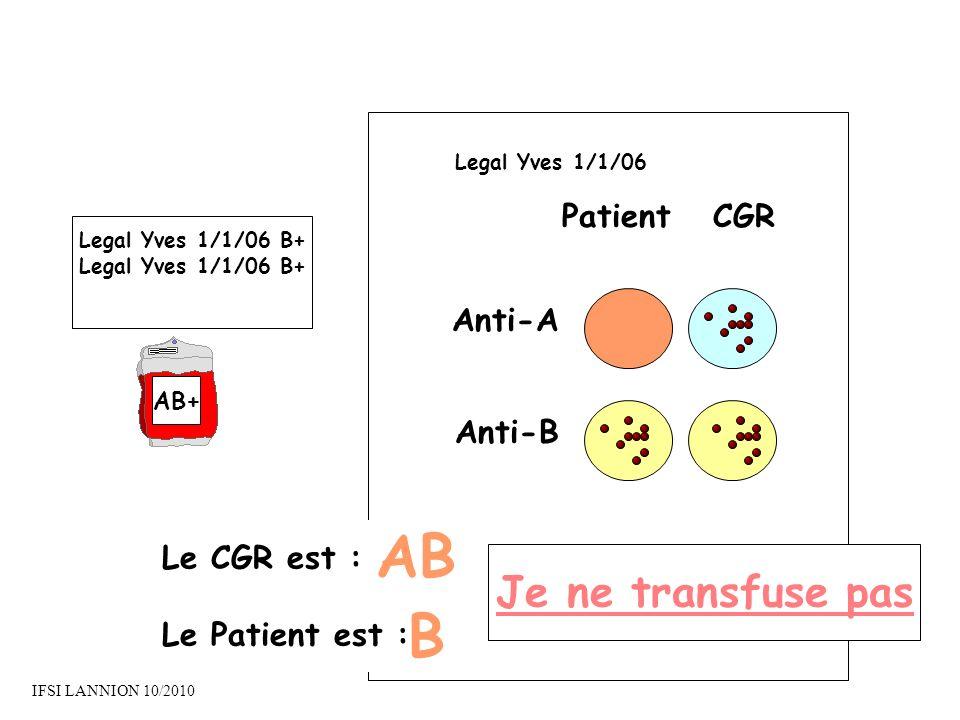 PatientCGR Anti-A Anti-B Le CGR est : Le Patient est : AB B Je ne transfuse pas Legal Yves 1/1/06 Legal Yves 1/1/06 B+ AB+ IFSI LANNION 10/2010