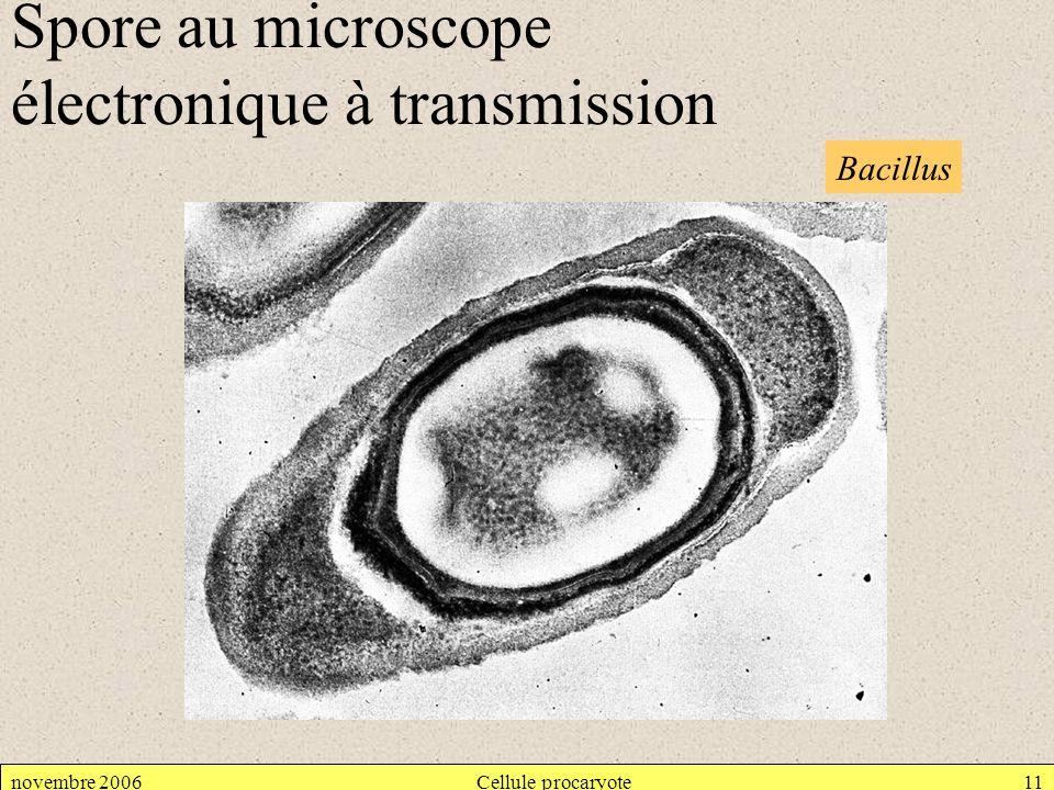 novembre 2006Cellule procaryote11 Bacillus Spore au microscope électronique à transmission