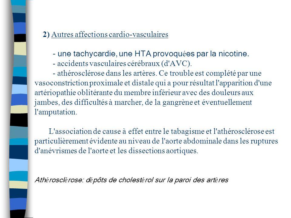 2) Autres affections cardio-vasculaires - une tachycardie, une HTA provoqu é es par la nicotine. - accidents vasculaires cérébraux (d'AVC). - athérosc