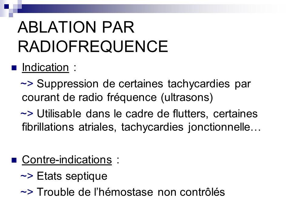 ABLATION PAR RADIOFREQUENCE Indication : ~> Suppression de certaines tachycardies par courant de radio fréquence (ultrasons) ~> Utilisable dans le cad