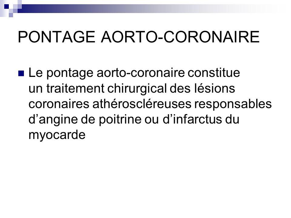 PONTAGE AORTO-CORONAIRE Le pontage aorto-coronaire constitue un traitement chirurgical des lésions coronaires athéroscléreuses responsables dangine de