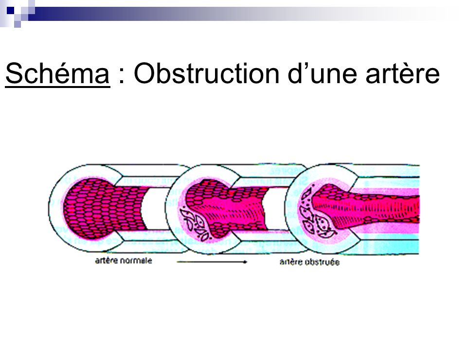 Schéma : Obstruction dune artère