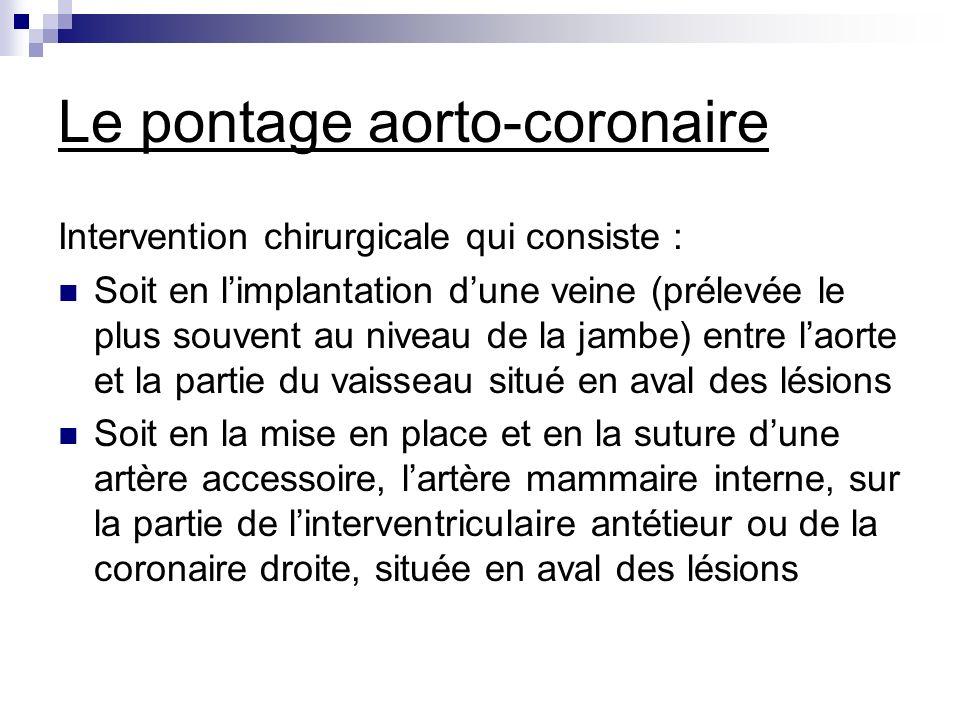 Le pontage aorto-coronaire Intervention chirurgicale qui consiste : Soit en limplantation dune veine (prélevée le plus souvent au niveau de la jambe)