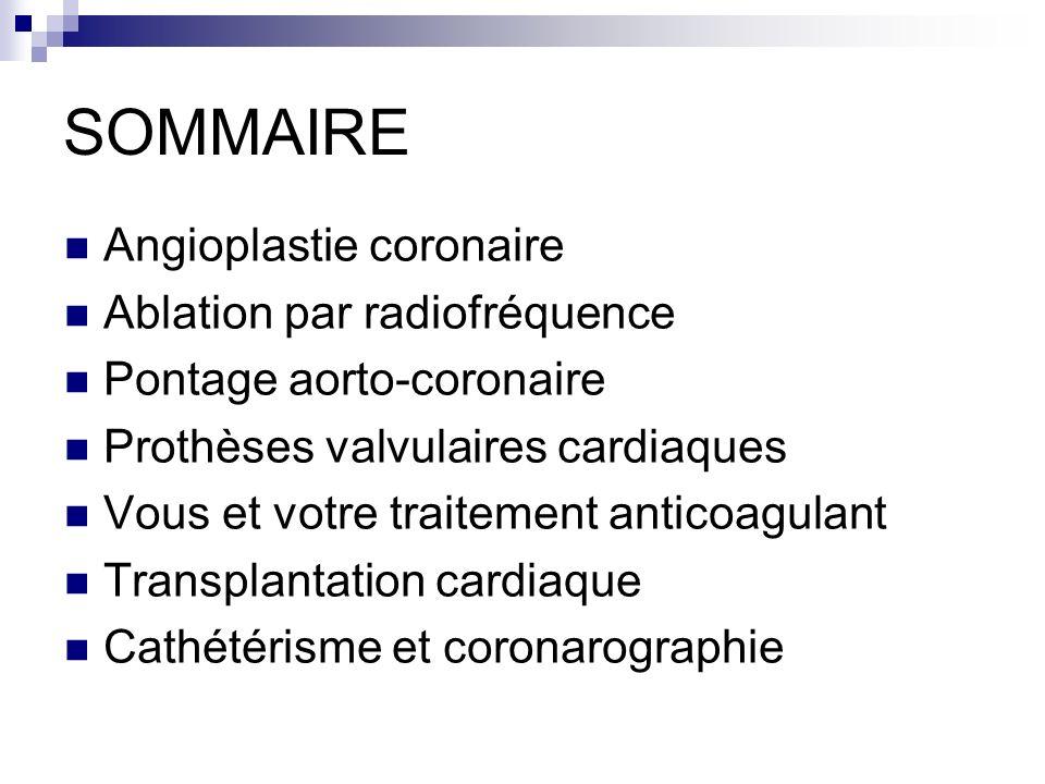 SOMMAIRE Angioplastie coronaire Ablation par radiofréquence Pontage aorto-coronaire Prothèses valvulaires cardiaques Vous et votre traitement anticoag
