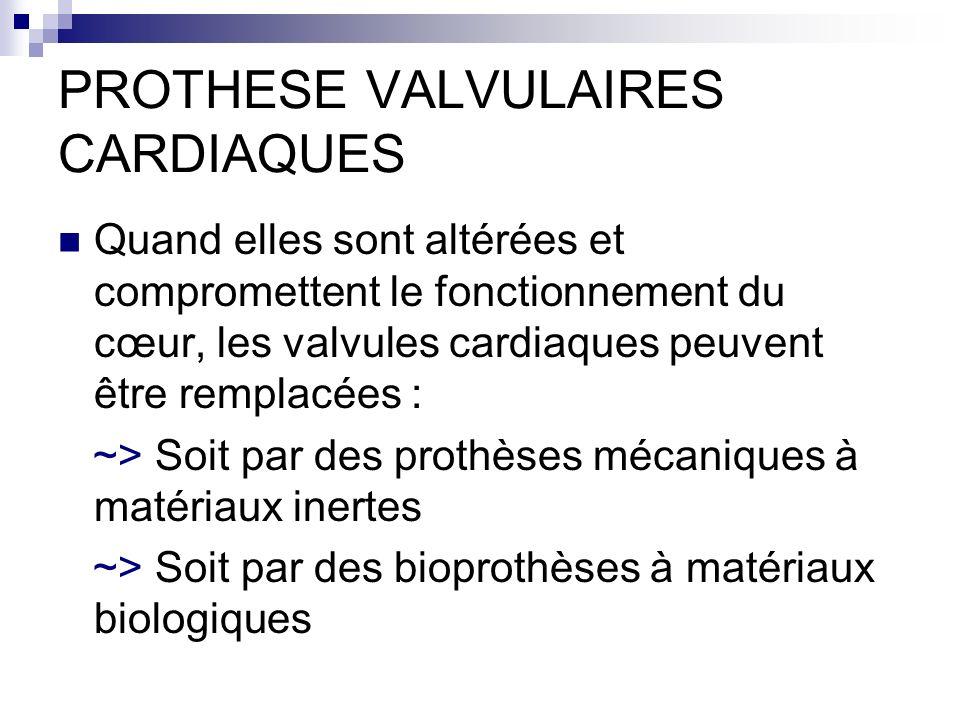 PROTHESE VALVULAIRES CARDIAQUES Quand elles sont altérées et compromettent le fonctionnement du cœur, les valvules cardiaques peuvent être remplacées