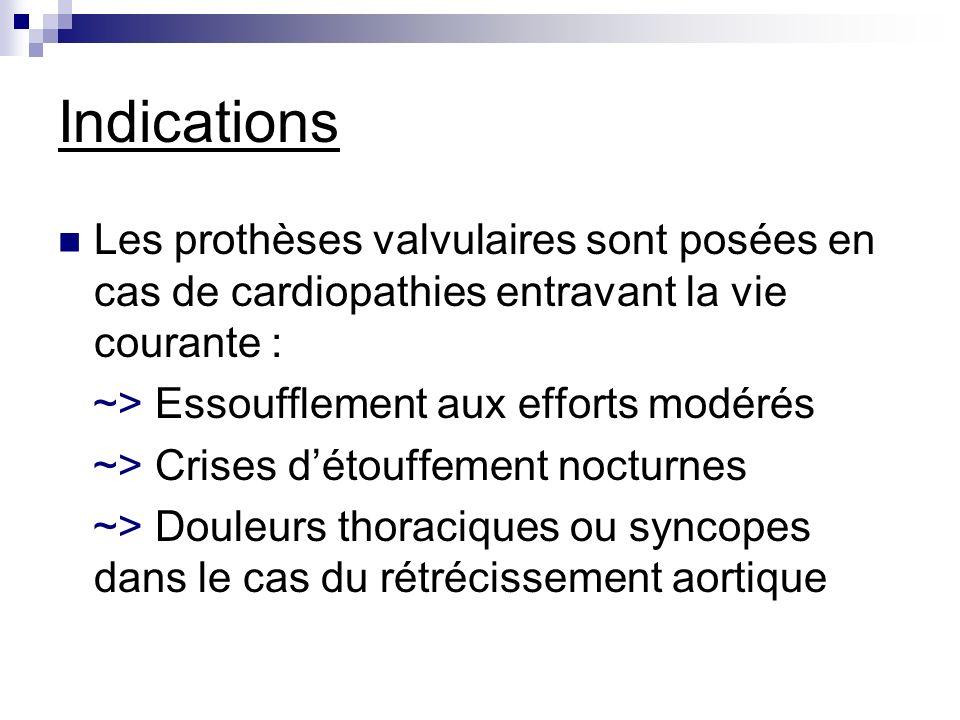Indications Les prothèses valvulaires sont posées en cas de cardiopathies entravant la vie courante : ~> Essoufflement aux efforts modérés ~> Crises d