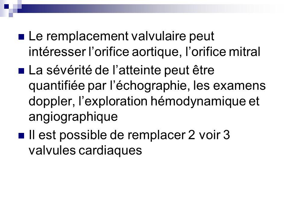 Le remplacement valvulaire peut intéresser lorifice aortique, lorifice mitral La sévérité de latteinte peut être quantifiée par léchographie, les exam