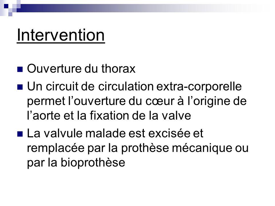 Intervention Ouverture du thorax Un circuit de circulation extra-corporelle permet louverture du cœur à lorigine de laorte et la fixation de la valve