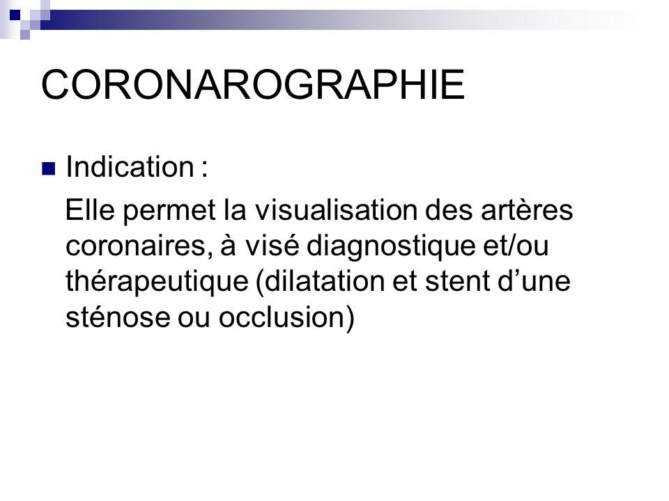 CORONAROGRAPHIE Indication : Elle permet la visualisation des artères coronaires, à visé diagnostique et/ou thérapeutique (dilatation et stent dune st